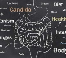 Candida Causes chart