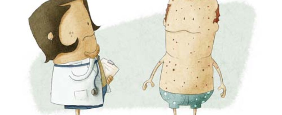 Yeast Problems & Symptoms - rashes